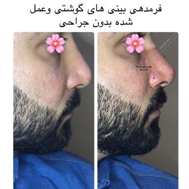 کوچک سازی بینی بدون جراحی